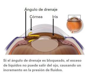 Ojo_Glaucoma