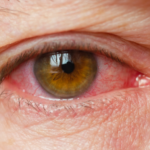 ¿Es COVID-19 o Alergia?